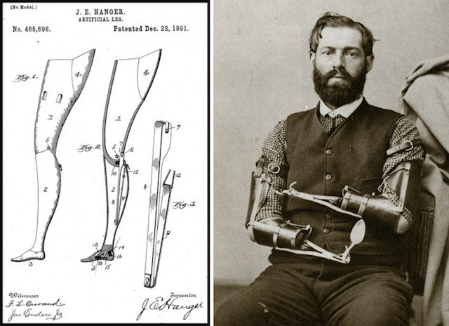 L: James Hanger's early prosthetics circa 1891; R: Samuel Decker's mechanical arms. Image via Collectors Weekly.