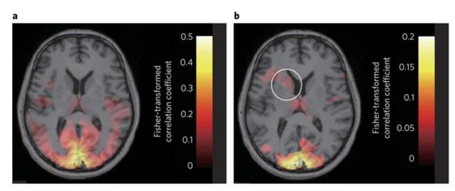fear-brain-scan